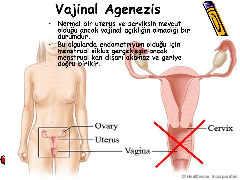 Vajinal Agenezis Normal bir uterus ve serviksin mevcut olduğu ancak vajinal açıklığın olmadığı bir durumdur.