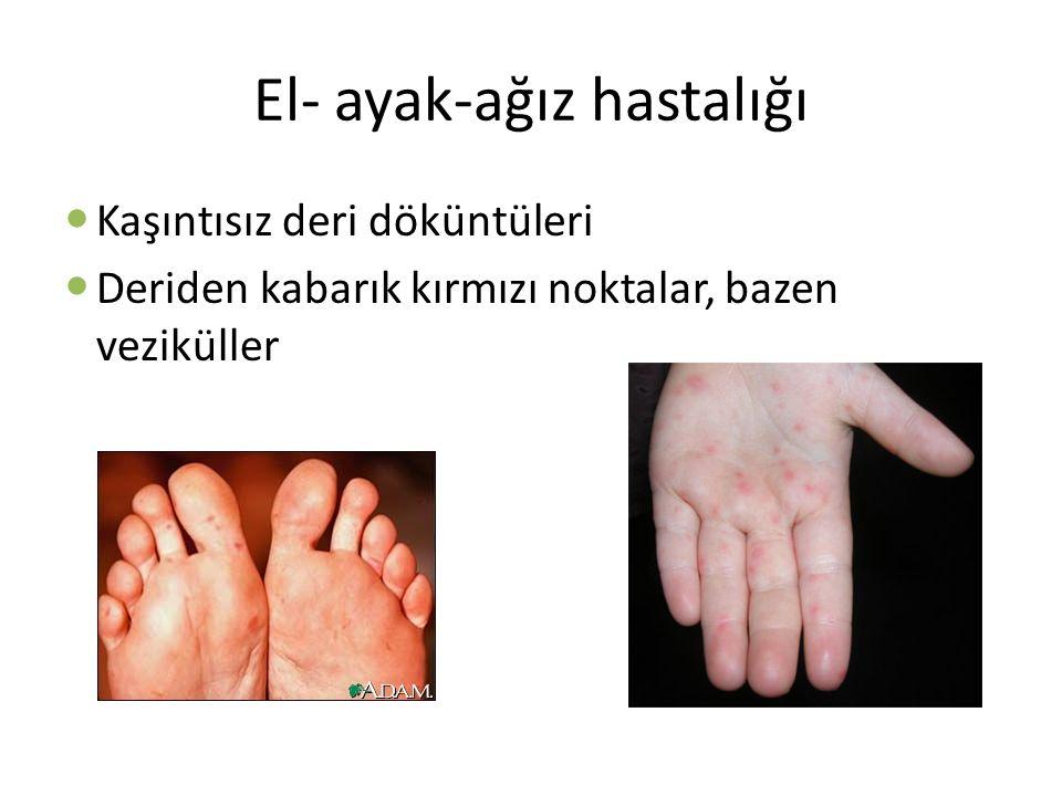 El- ayak-ağız hastalığı