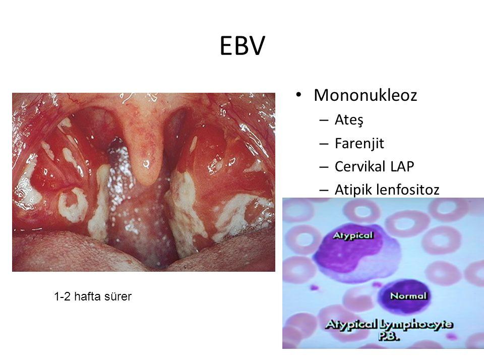 EBV Mononukleoz Ateş Farenjit Cervikal LAP Atipik lenfositoz