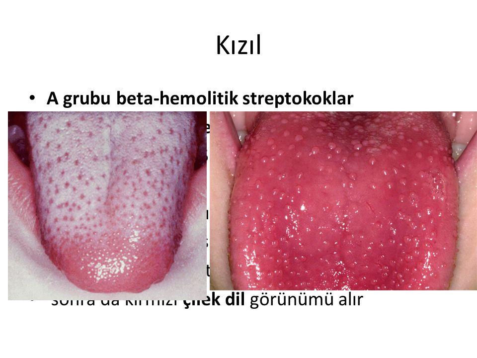 Kızıl A grubu beta-hemolitik streptokoklar
