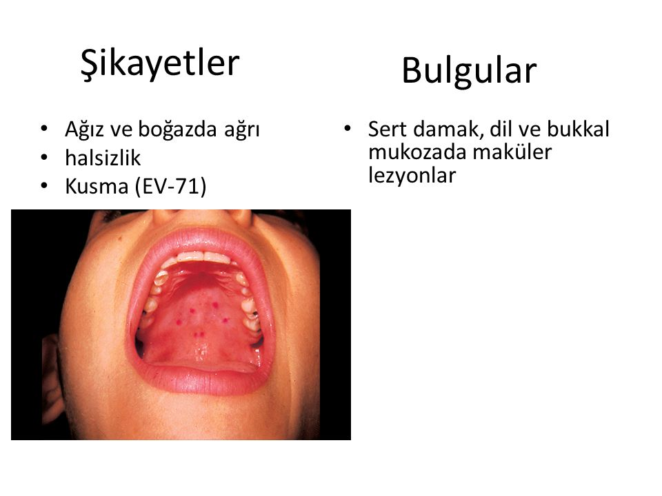 Şikayetler Bulgular Ağız ve boğazda ağrı halsizlik Kusma (EV-71)