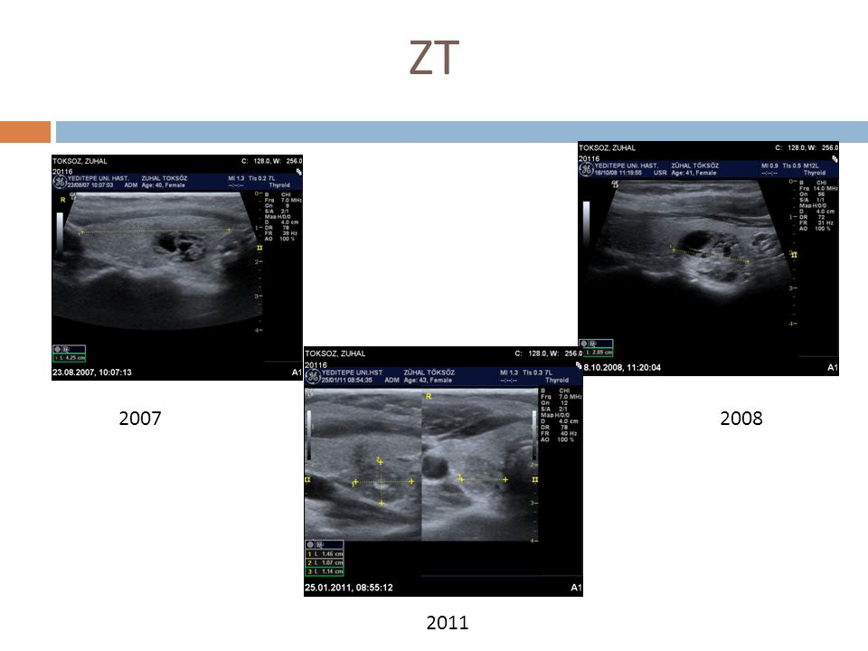 ZT 2007 2008 2011