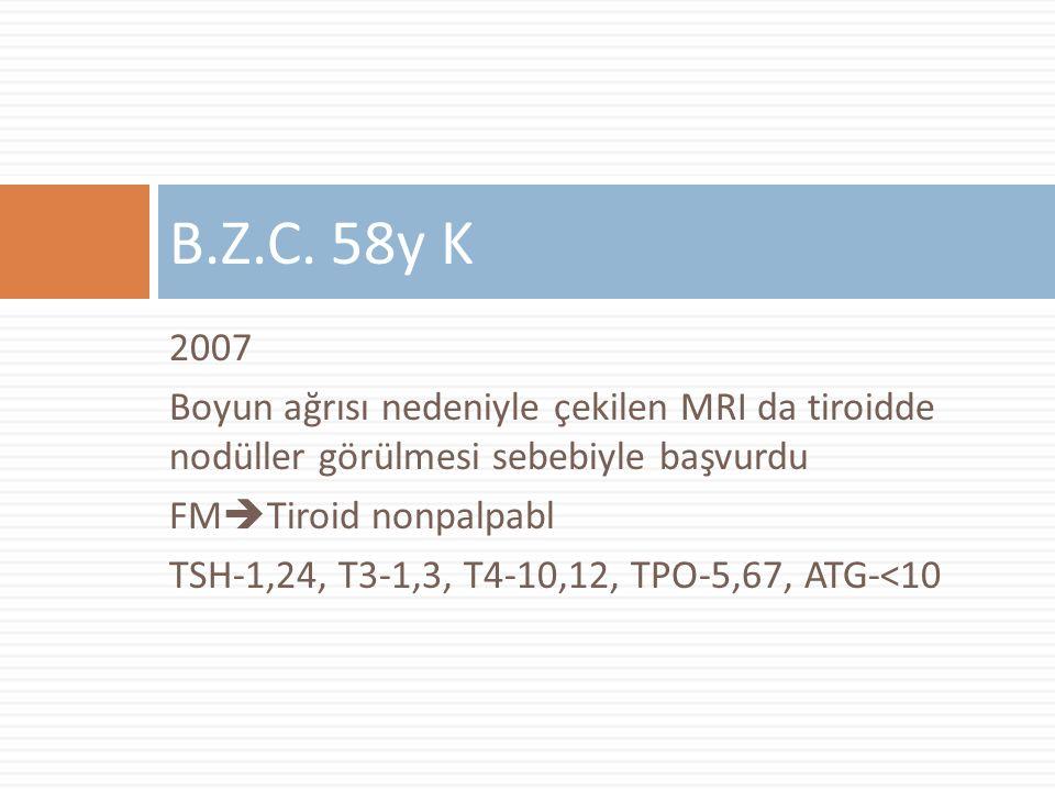 B.Z.C. 58y K 2007. Boyun ağrısı nedeniyle çekilen MRI da tiroidde nodüller görülmesi sebebiyle başvurdu.