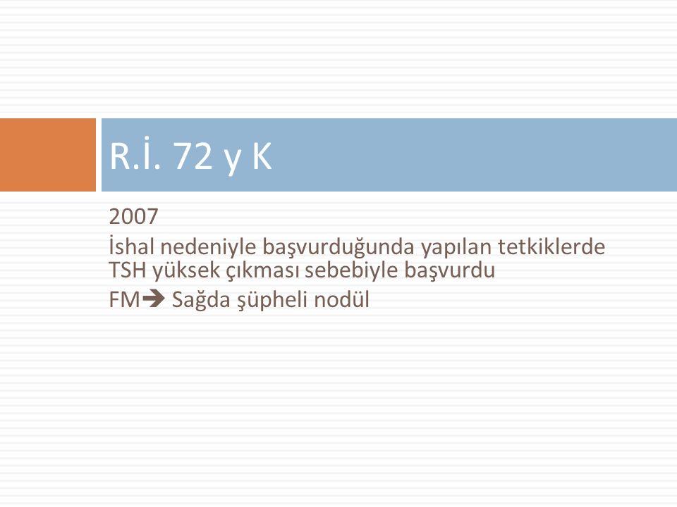 R.İ. 72 y K 2007. İshal nedeniyle başvurduğunda yapılan tetkiklerde TSH yüksek çıkması sebebiyle başvurdu.