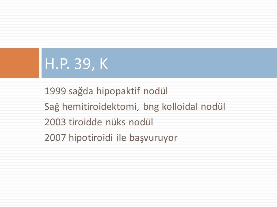 H.P. 39, K 1999 sağda hipopaktif nodül