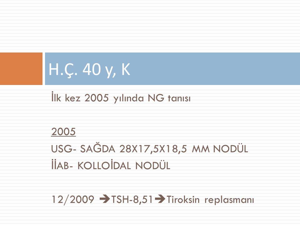 H.Ç. 40 y, K İlk kez 2005 yılında NG tanısı 2005