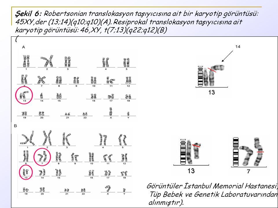 Şekil 6: Robertsonian translokasyon taşıyıcısına ait bir karyotip görüntüsü: 45XY,der (13;14)(q10;q10)(A). Resiprokal translokasyon taşıyıcısına ait karyotip görüntüsü: 46,XY, t(7;13)(q22;q12)(B) (