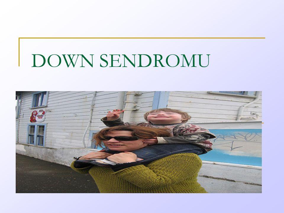DOWN SENDROMU Ee