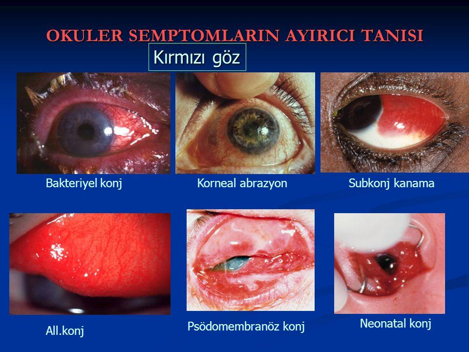 OKULER SEMPTOMLARIN AYIRICI TANISI