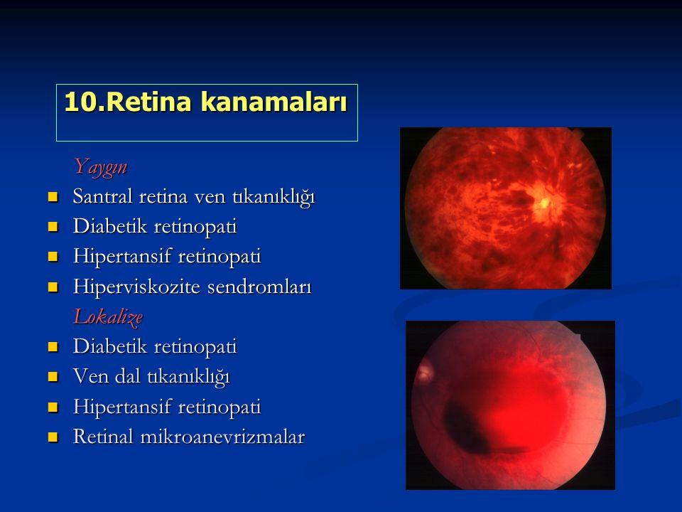10.Retina kanamaları Yaygın Santral retina ven tıkanıklığı
