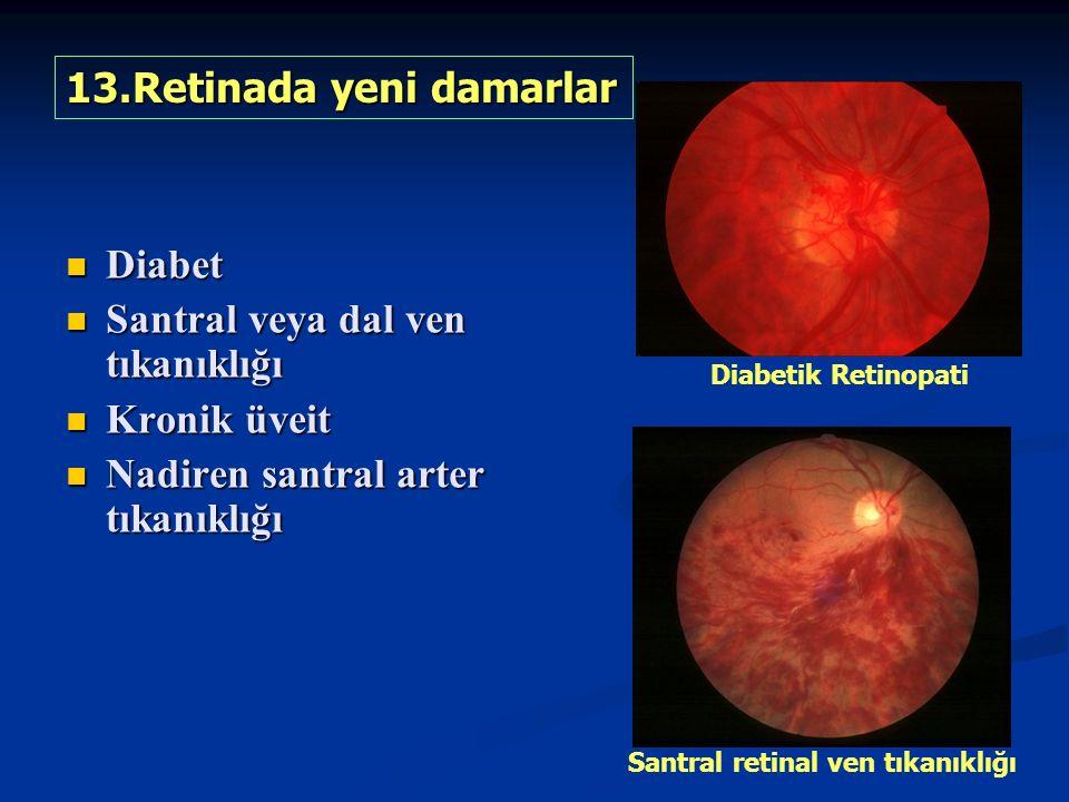 13.Retinada yeni damarlar