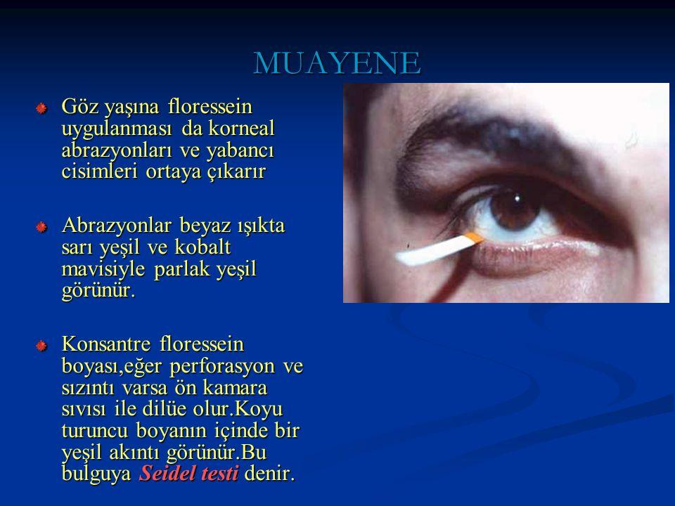 MUAYENE Göz yaşına floressein uygulanması da korneal abrazyonları ve yabancı cisimleri ortaya çıkarır.