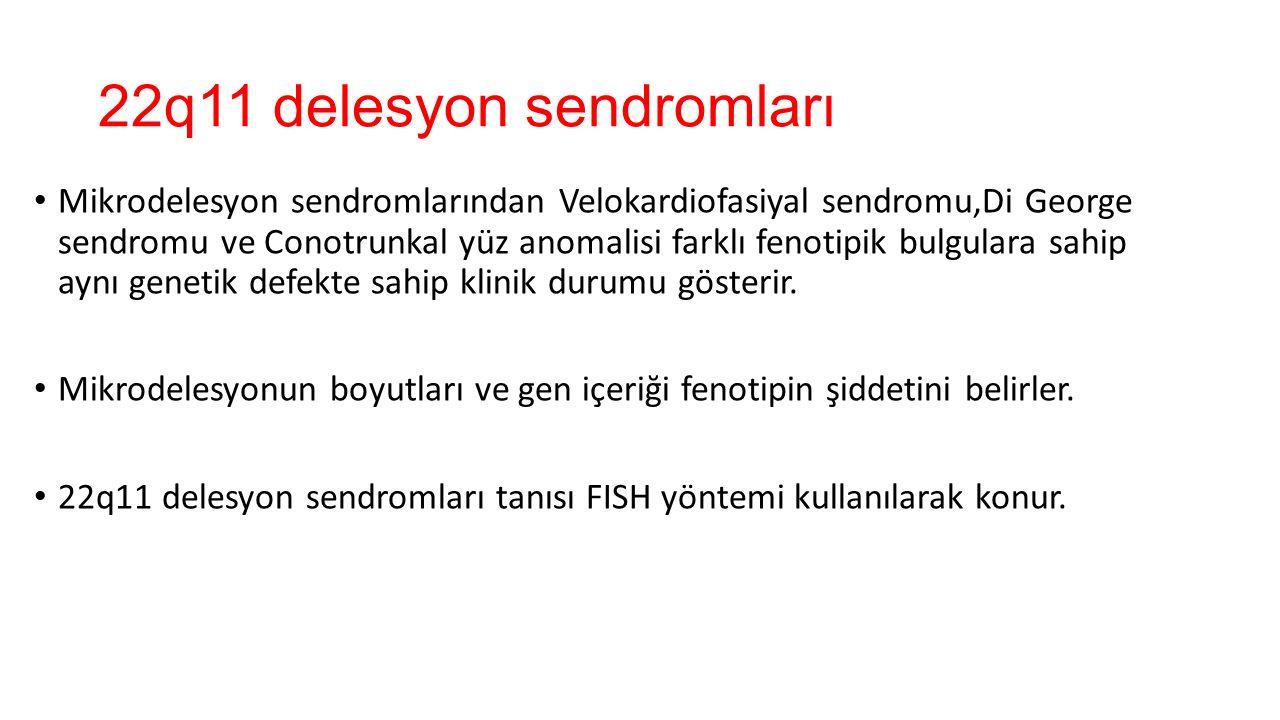 22q11 delesyon sendromları