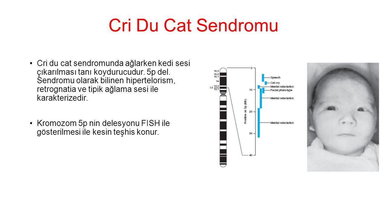 Cri Du Cat Sendromu