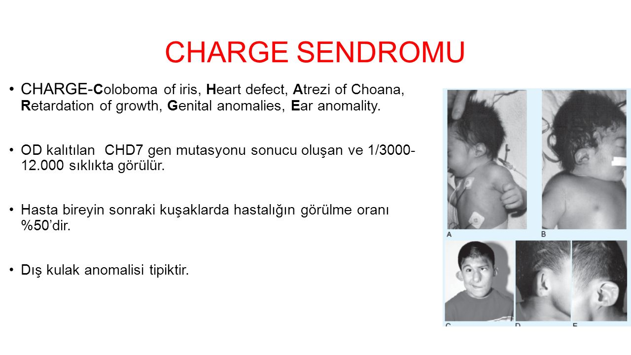 CHARGE SENDROMU CHARGE-Coloboma of iris, Heart defect, Atrezi of Choana, Retardation of growth, Genital anomalies, Ear anomality.