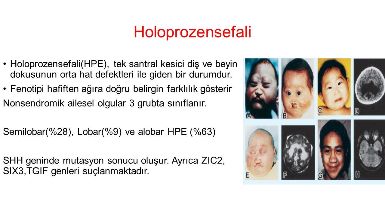 Holoprozensefali Holoprozensefali(HPE), tek santral kesici diş ve beyin dokusunun orta hat defektleri ile giden bir durumdur.