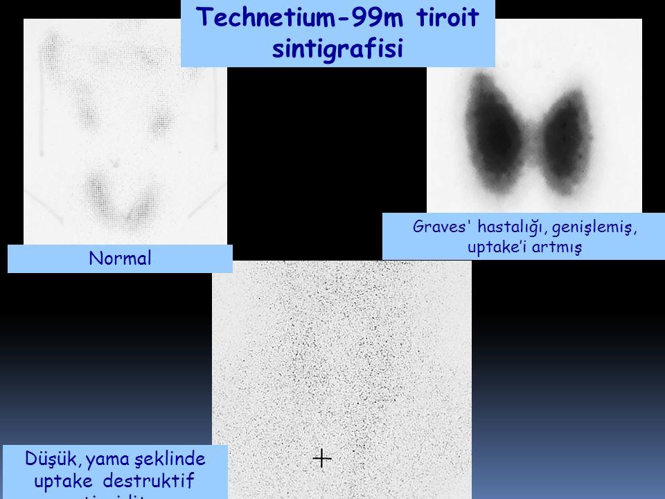 Technetium-99m tiroit sintigrafisi