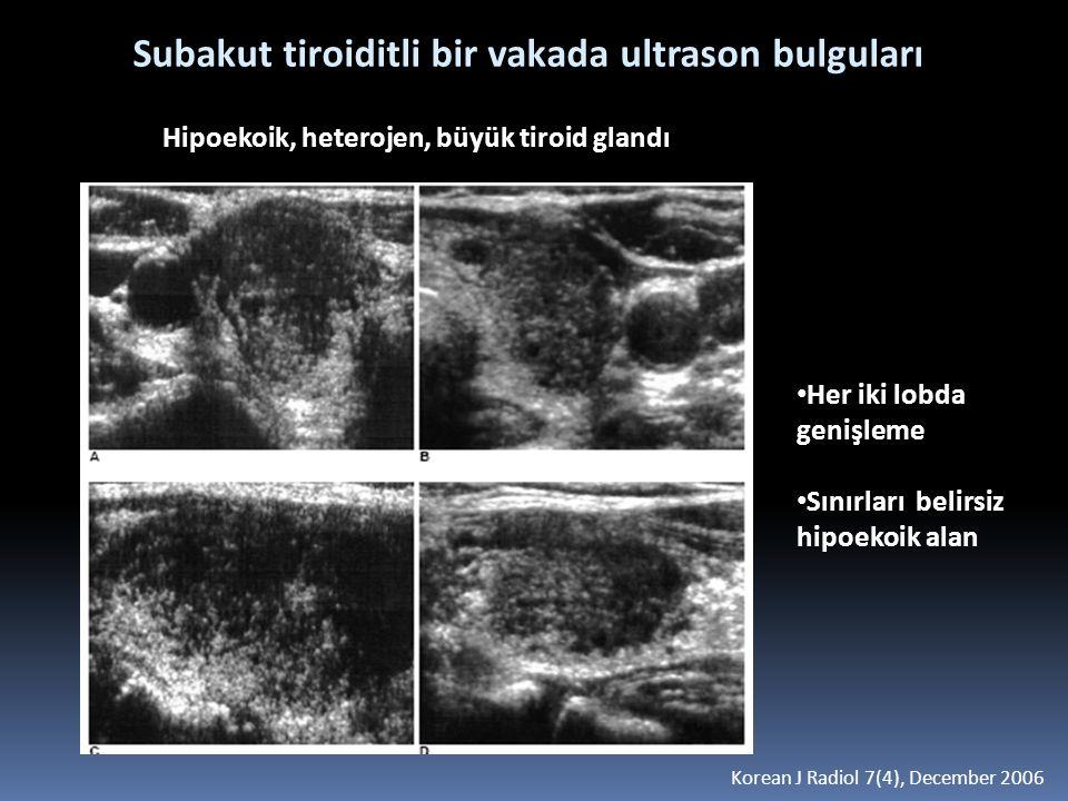 Subakut tiroiditli bir vakada ultrason bulguları