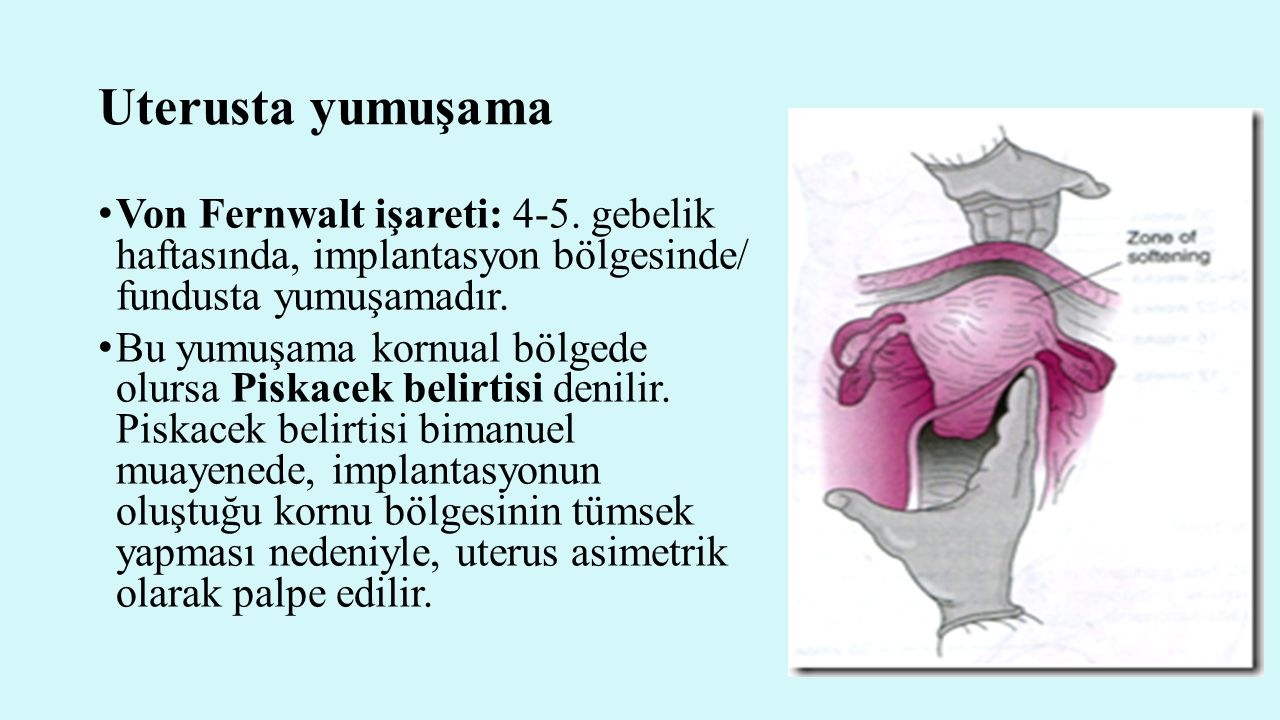 Uterusta yumuşama Von Fernwalt işareti: 4-5. gebelik haftasında, implantasyon bölgesinde/ fundusta yumuşamadır.