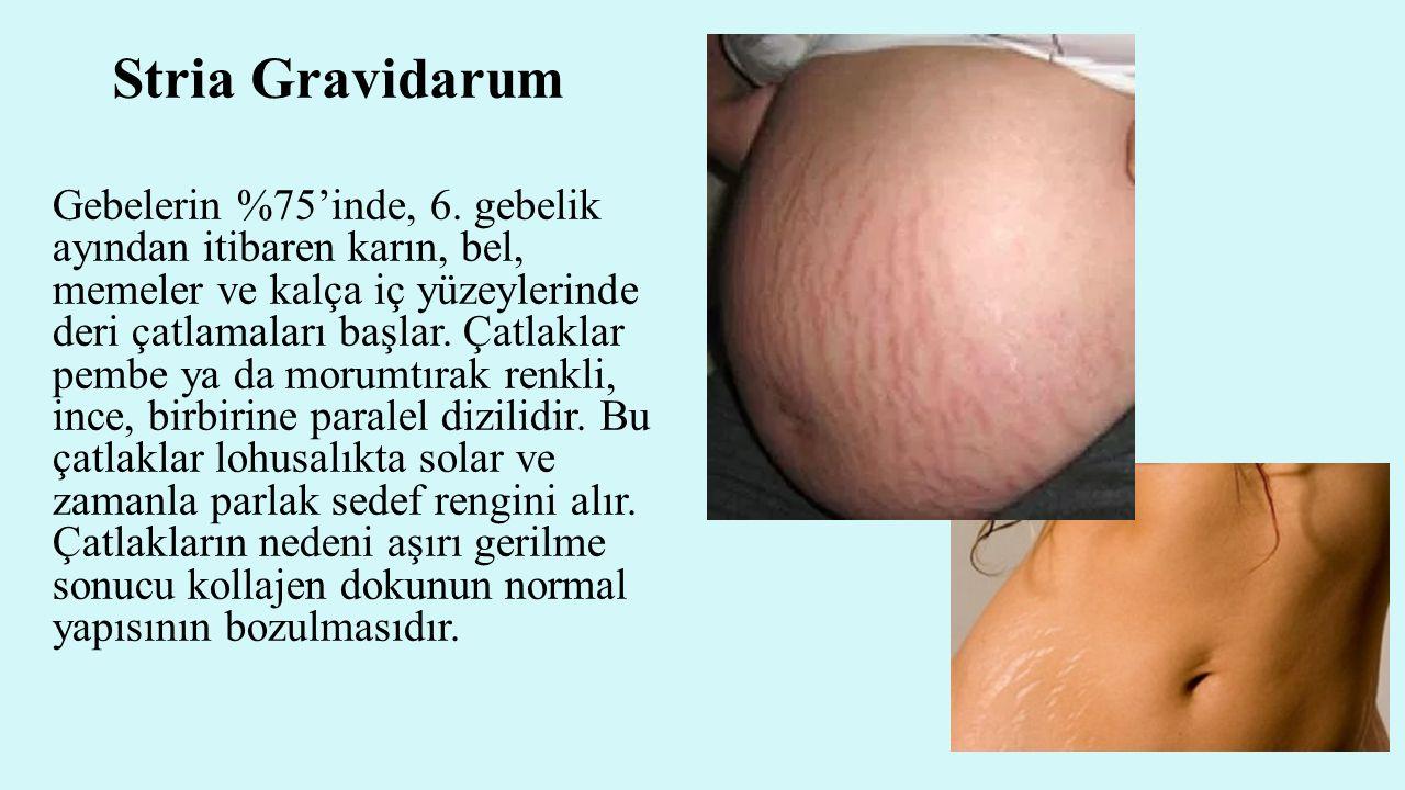 Stria Gravidarum