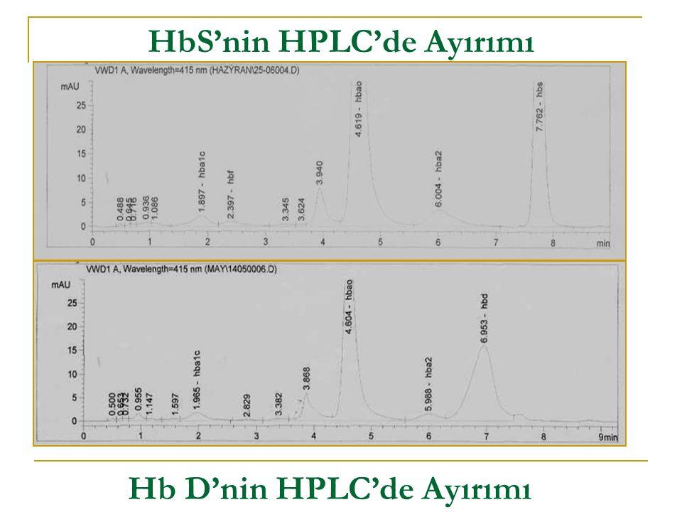 HbS'nin HPLC'de Ayırımı