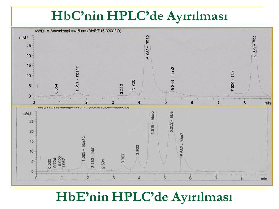 HbC'nin HPLC'de Ayırılması