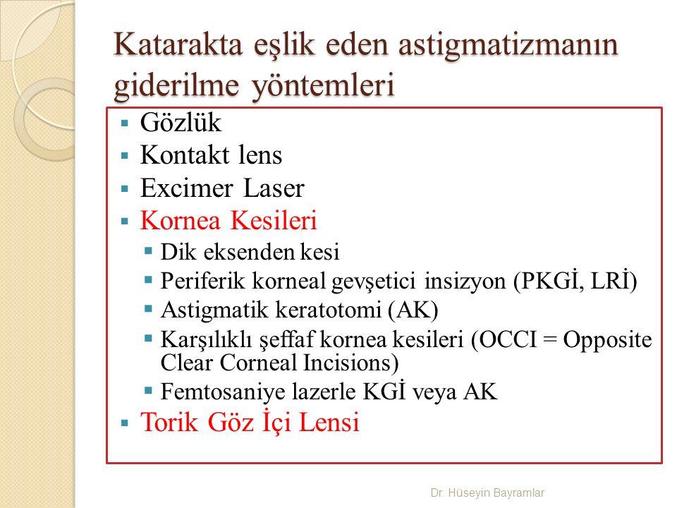 Katarakta eşlik eden astigmatizmanın giderilme yöntemleri