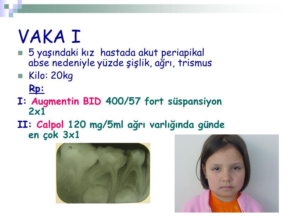 VAKA I 5 yaşındaki kız hastada akut periapikal abse nedeniyle yüzde şişlik, ağrı, trismus. Kilo: 20kg.