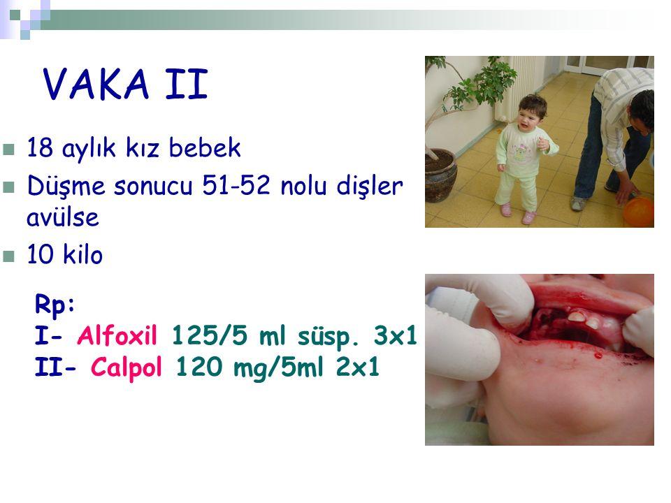 VAKA II 18 aylık kız bebek Düşme sonucu 51-52 nolu dişler avülse