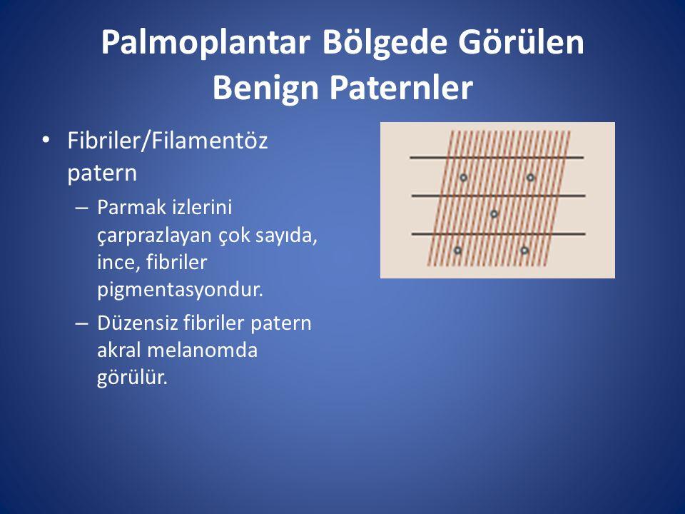Palmoplantar Bölgede Görülen Benign Paternler