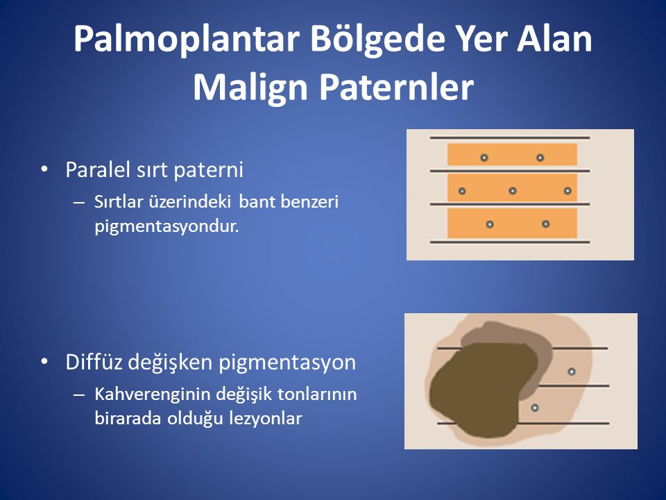 Palmoplantar Bölgede Yer Alan Malign Paternler