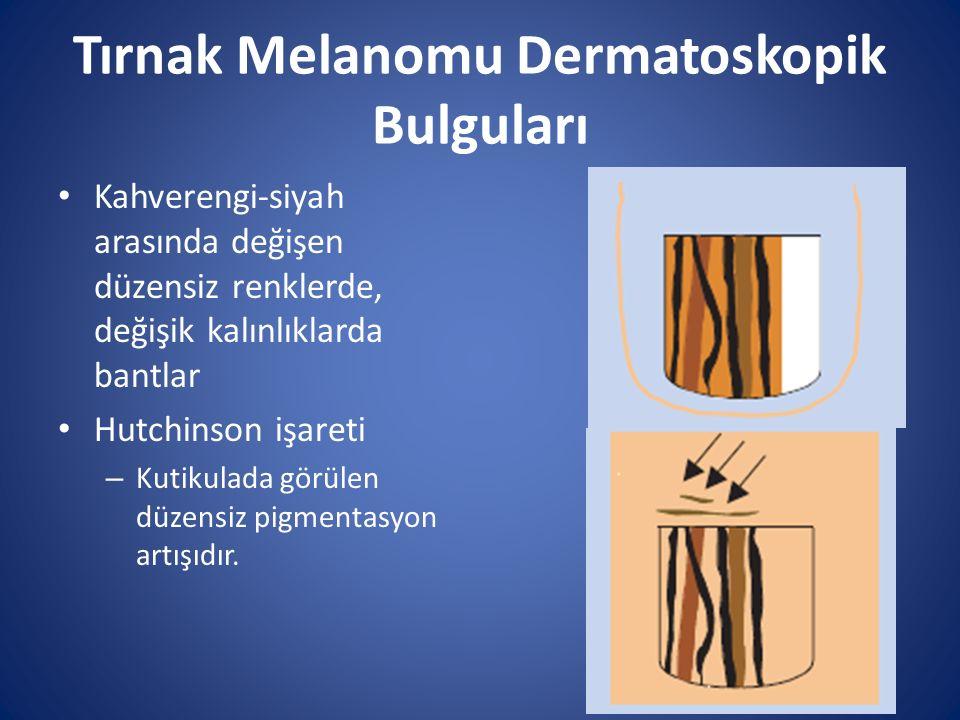 Tırnak Melanomu Dermatoskopik Bulguları