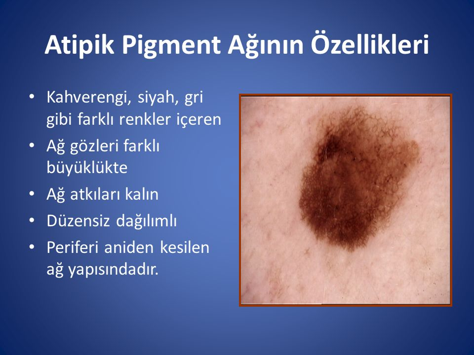 Atipik Pigment Ağının Özellikleri