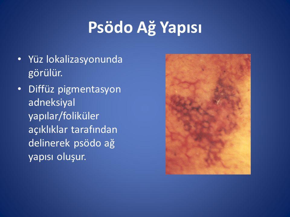Psödo Ağ Yapısı Yüz lokalizasyonunda görülür.