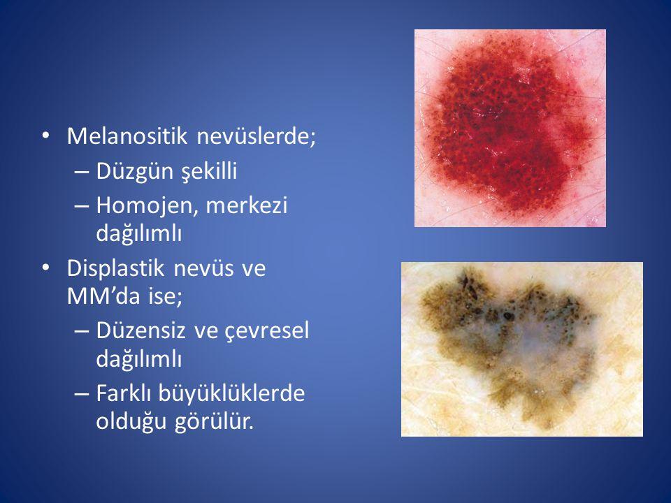 Melanositik nevüslerde;