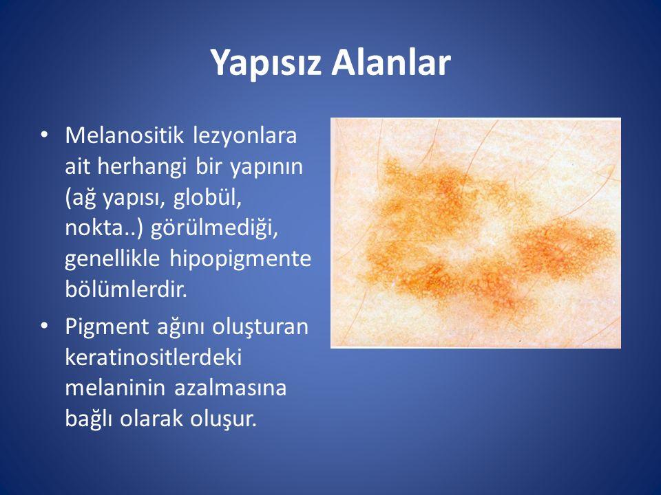 Yapısız Alanlar Melanositik lezyonlara ait herhangi bir yapının (ağ yapısı, globül, nokta..) görülmediği, genellikle hipopigmente bölümlerdir.