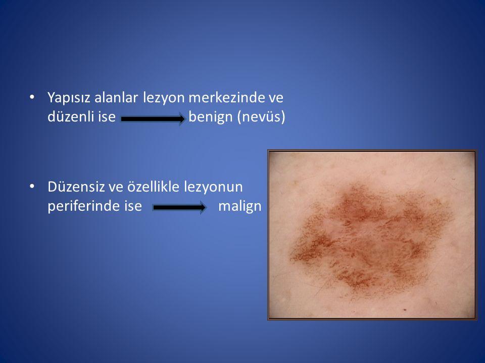Yapısız alanlar lezyon merkezinde ve düzenli ise benign (nevüs)