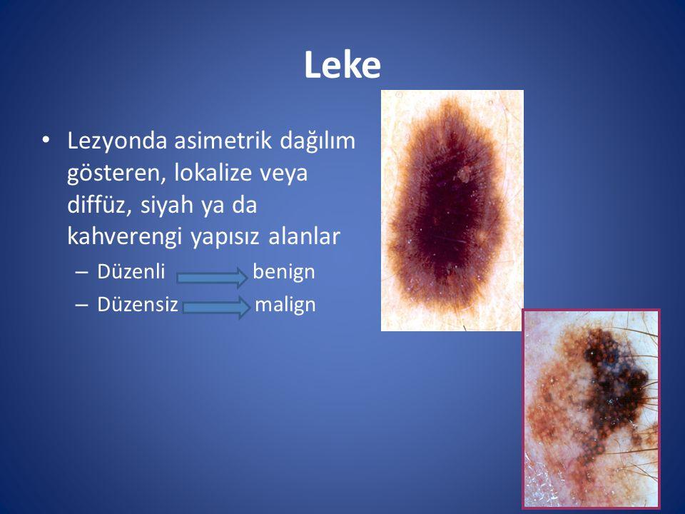 Leke Lezyonda asimetrik dağılım gösteren, lokalize veya diffüz, siyah ya da kahverengi yapısız alanlar.
