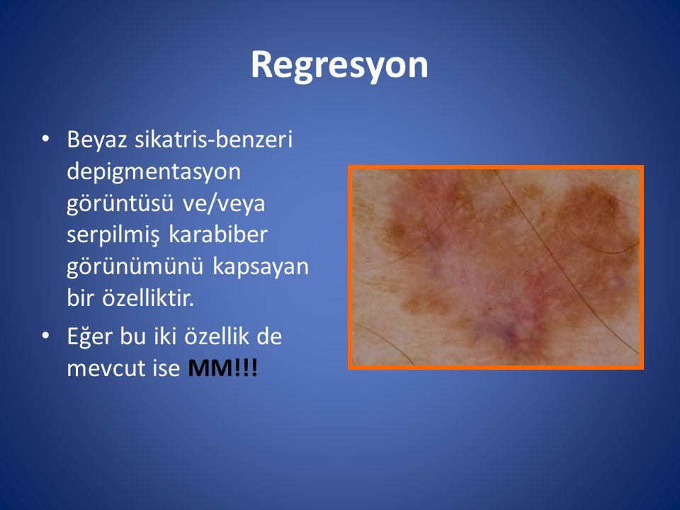 Regresyon Beyaz sikatris-benzeri depigmentasyon görüntüsü ve/veya serpilmiş karabiber görünümünü kapsayan bir özelliktir.