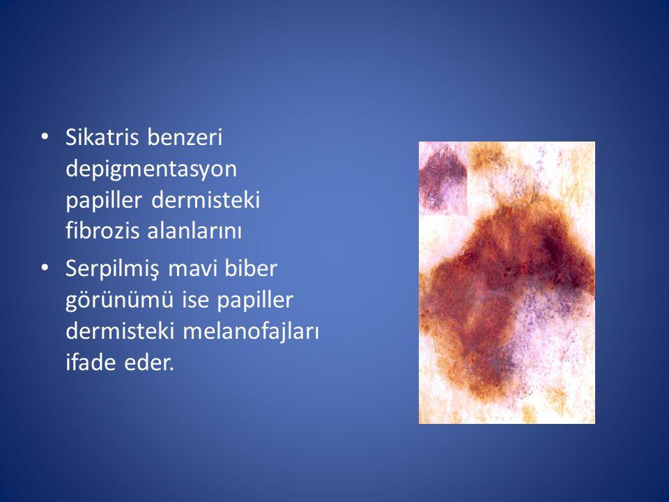Sikatris benzeri depigmentasyon papiller dermisteki fibrozis alanlarını