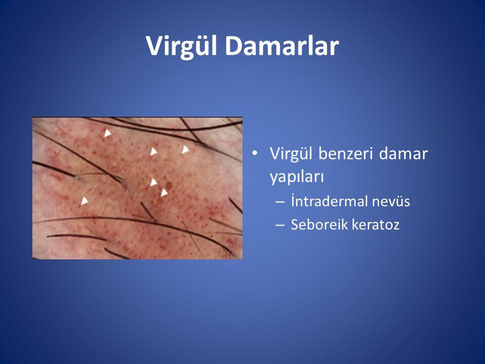 Virgül Damarlar Virgül benzeri damar yapıları İntradermal nevüs