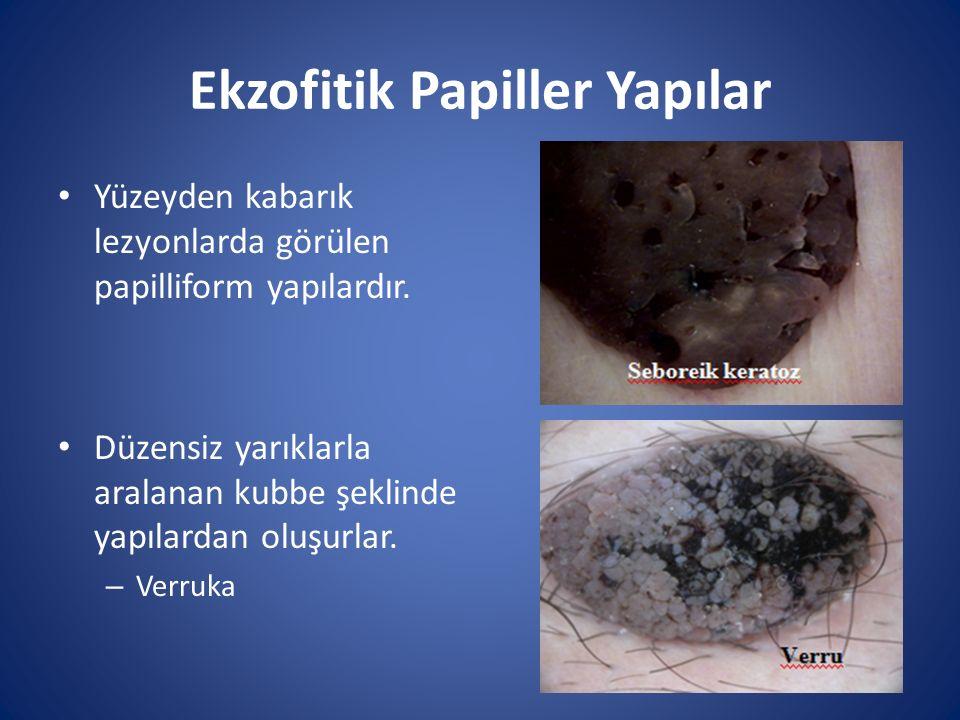 Ekzofitik Papiller Yapılar