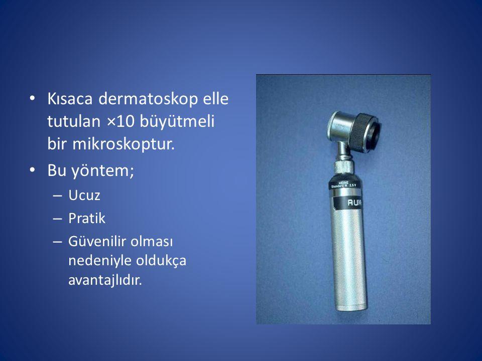 Kısaca dermatoskop elle tutulan ×10 büyütmeli bir mikroskoptur.