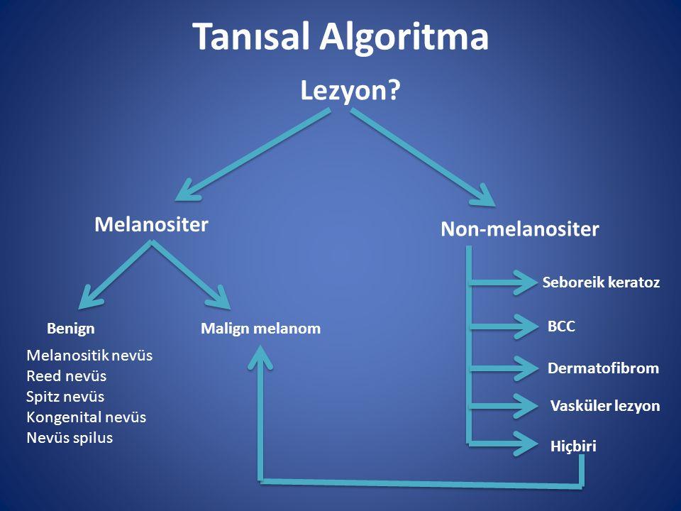 Tanısal Algoritma Lezyon Melanositer Non-melanositer Seboreik keratoz