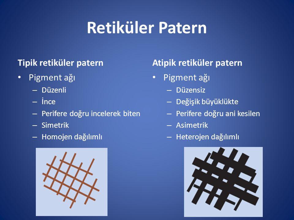 Retiküler Patern Tipik retiküler patern Atipik retiküler patern
