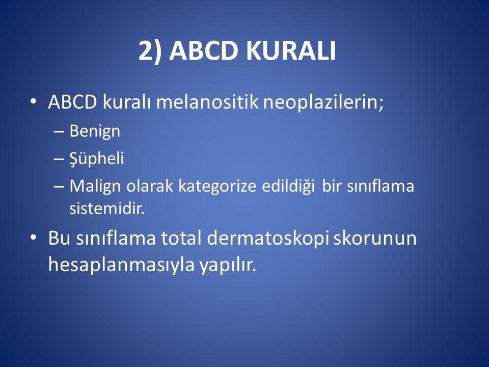 2) ABCD KURALI ABCD kuralı melanositik neoplazilerin;