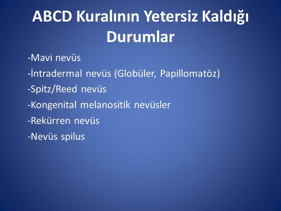 ABCD Kuralının Yetersiz Kaldığı Durumlar