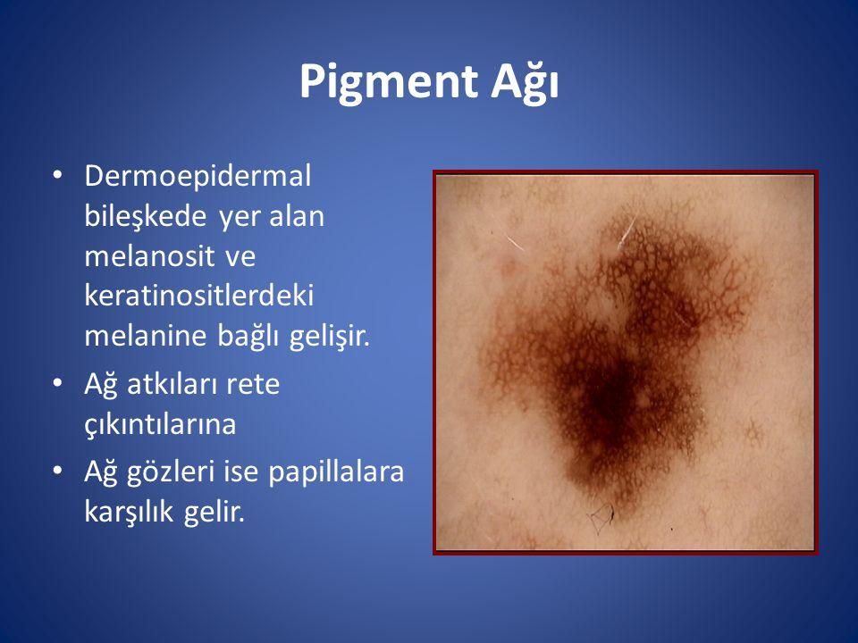 Pigment Ağı Dermoepidermal bileşkede yer alan melanosit ve keratinositlerdeki melanine bağlı gelişir.
