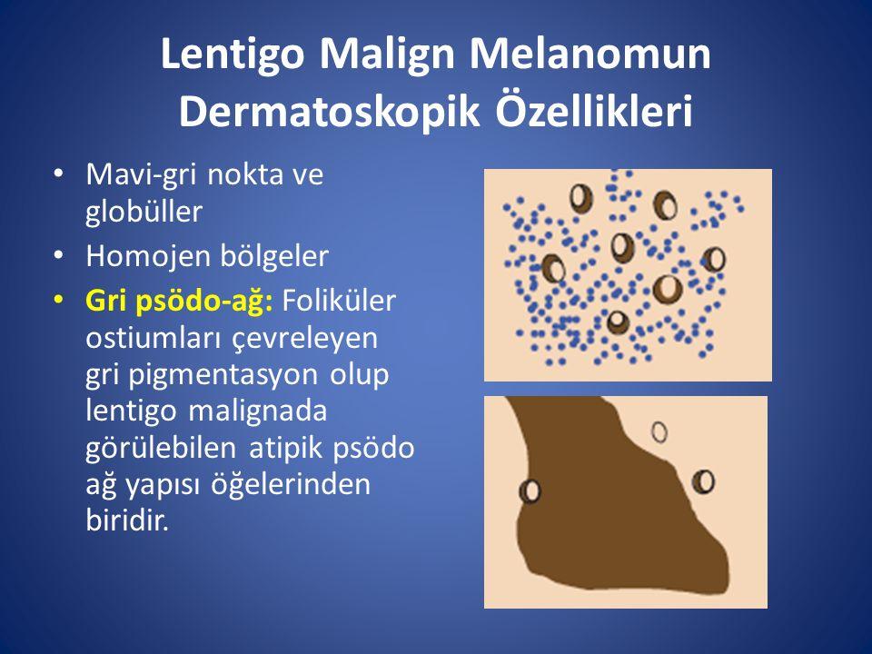 Lentigo Malign Melanomun Dermatoskopik Özellikleri