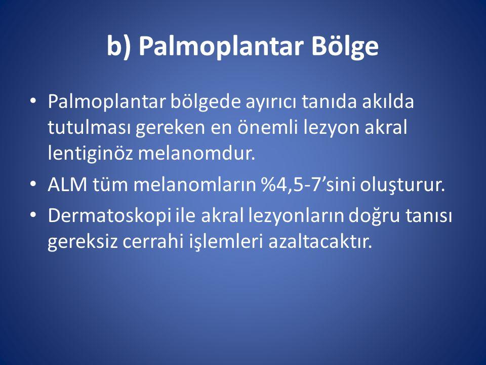 b) Palmoplantar Bölge Palmoplantar bölgede ayırıcı tanıda akılda tutulması gereken en önemli lezyon akral lentiginöz melanomdur.